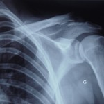 broken shoulder